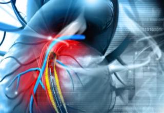 Mallas biodegradables para evitar el riesgo de embolias en pacientes con arterioresclerosis